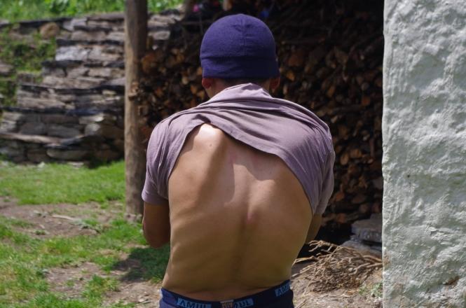 ang-dawa-back-surgery